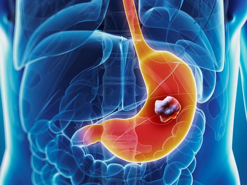 Установлены гены, связанные с раком желудка