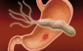 Натуральный антиоксидант предотвращает появление язвы желудка лучше лекарств