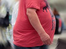 Ожирение в молодом возрасте существенно повышает риск рака желудка