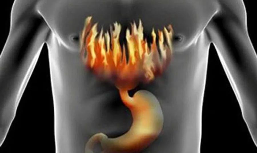 Изжога повышает риск возникновения рака