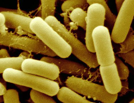 Кисломолочные бактерии помогают победить язву