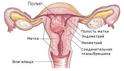 Маточные полипы — симптомы и лечение
