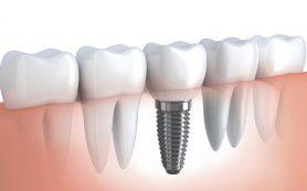 Современное протезирование зубов, типы протеза, ход лечения