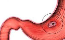 В язвенной болезни желудка виновата бактерия