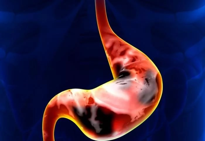 Употребление молока снижает риск возникновения рака желудка