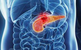 Содержащиеся в слюне бактерии помогут выявить панкреатический рак