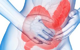 Гипнотерапия помогает ослабить симптомы при синдроме раздраженного кишечника