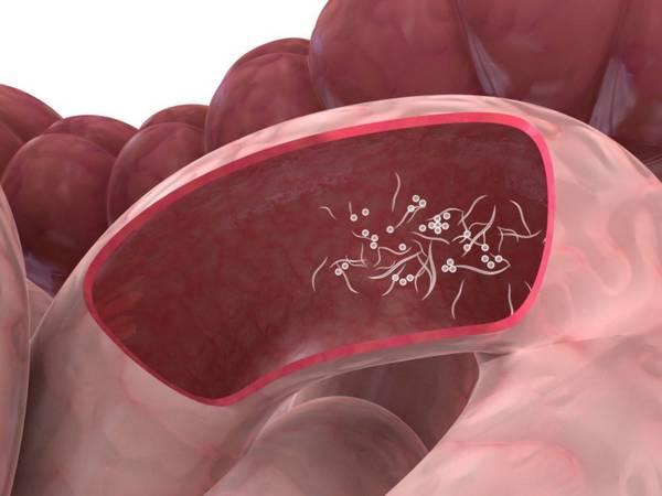 Табак и алкоголь значительно повышают риск возникновения рака кишечника