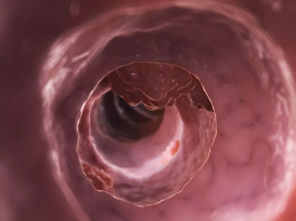 Что нужно делать, чтобы уберечься от рака кишечника