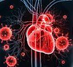 Инфекционный эндокардит: причины, профилактика, симптомы, лечение