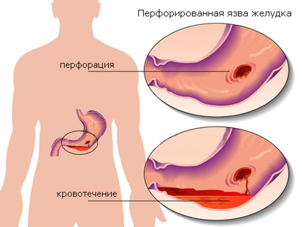 Как предотвратить осложнения язвы желудка