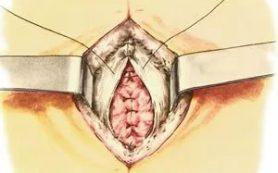 Как лечить выпадение прямой кишки