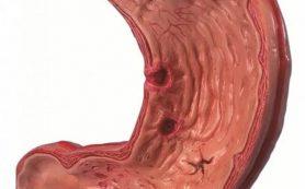 Эрозивный гастрит: лечение