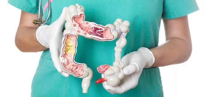 Новые способы обследования кишечника: интервью с профессором