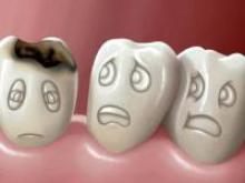 К чему приводит плохой уход за зубами: от кариеса до гастрита