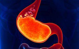 Проблемы с желудком как следствие избытка кислот в организме