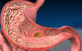 Гастрит: симптомы и предупреждение болезни