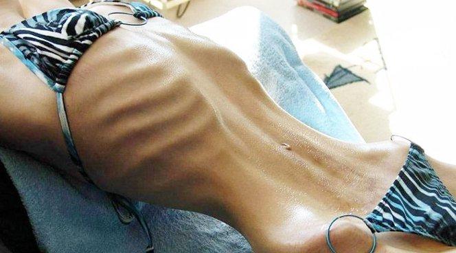 Нарушение пищевого поведения отмечается у каждой третьей девушки