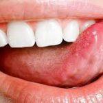 Борьба со стоматитом в домашних условиях