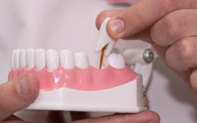 Имплантация зубов – современный и надежный метод протезирования