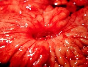 Язвенная болезнь желудка или 12-перстной кишки: Современные подходы к лечению и профилактике.