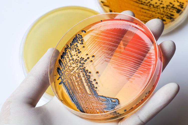 Сальмонеллез: симптомы и лечение
