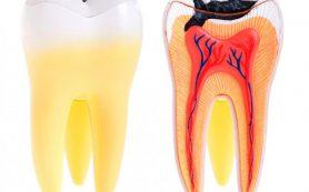 Киста зуба и причины ее возникновения
