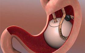 Шунтирование желудка помогает больным сахарным диабетом