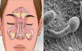 Ученые: Проблемы с кишечником вызывают заложенность носа