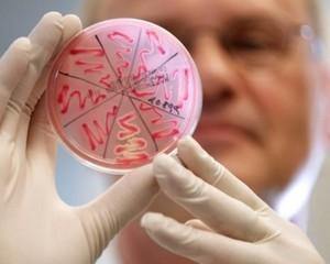 Кишечная инфекция может вызвать выкидыш