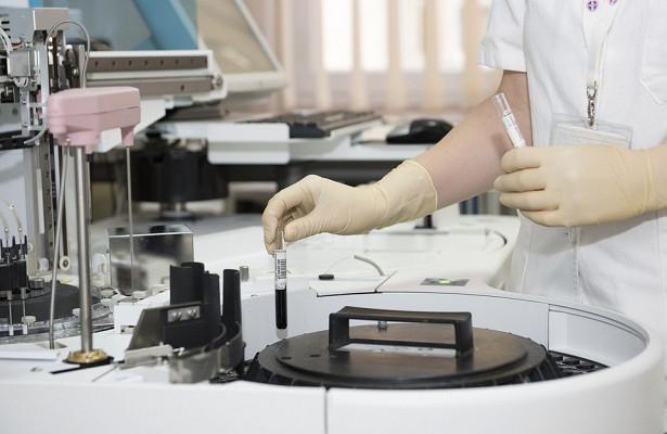 Лимфома опасна для пациентов с воспалением кишечника