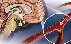 Атеросклероз: лечение, осложнения, профилактика
