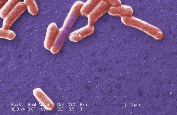 Непонятная эпидемия: почему воспаляется кишечник