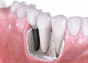 Имплантация — основа метода лечения зубов