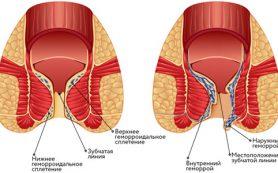 Увеличение внешних и внутренних геморроидальных узлов