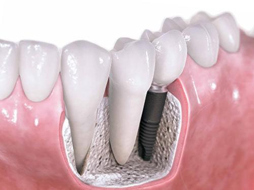Имплантация зубов или гарантия вашего здоровья