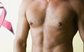 Диагностика рака груди у мужчин