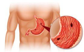 Язва желудка – откуда берется и что делать?