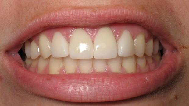 Гастрит провоцирует образование налета на зубах