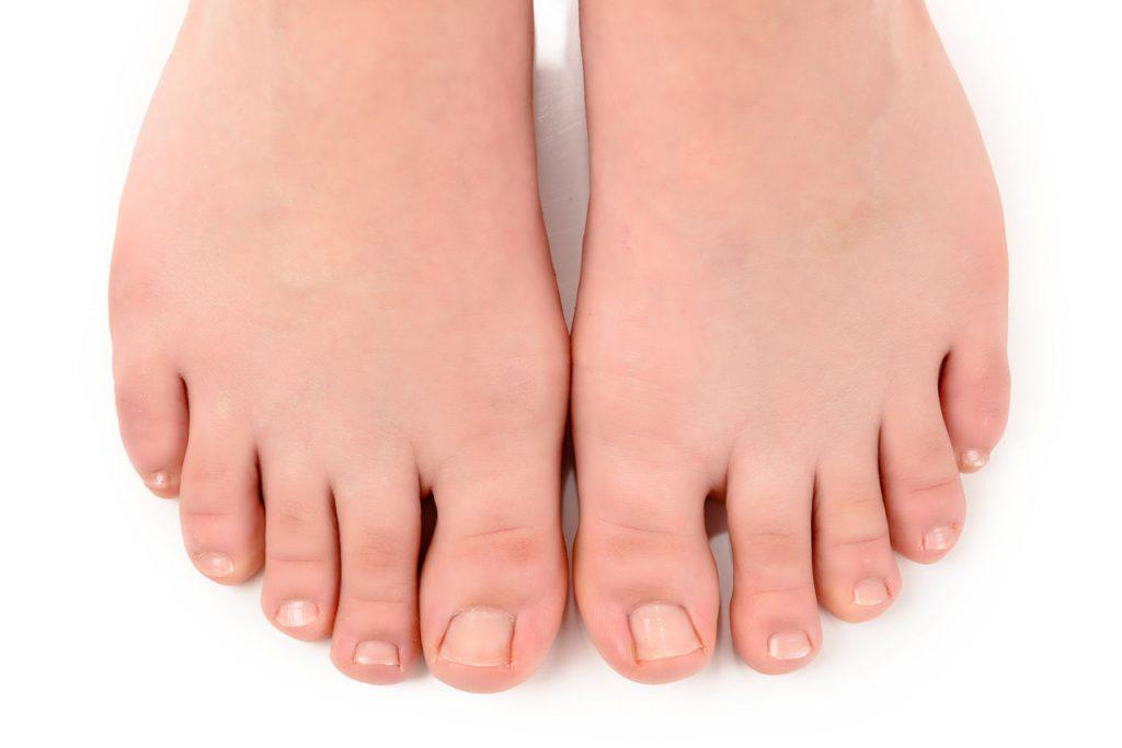 Вросший ноготь (онихокриптоз): причины заболевания, симптомы, лечение и профилактика