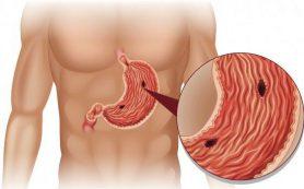 Больной желудок. Симптомы и профилактика