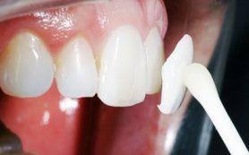 Процедура ламинирования зубов: что из себя представляет и кому следует делать?