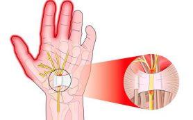 Кистевой туннельный синдром — симптомы, методы диагностики и лечения