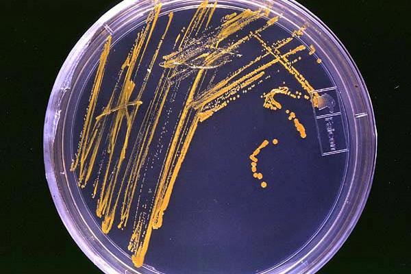 Уничтожение кишечной микрофлоры поможет улучшить результаты лечения сердечной недостаточности
