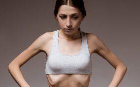 Признаки и симптомы анорексии