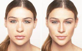 Ринопластика носа — что это за операция и как она проходит