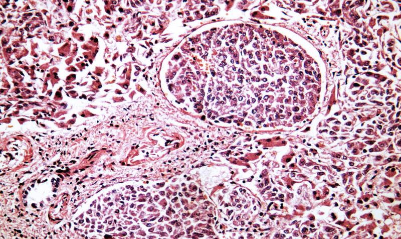 Рак печени и метастазы