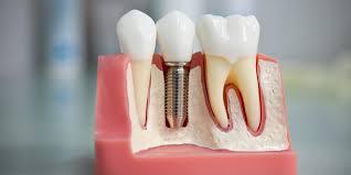 Протезирование зубов. История стоматологических практик