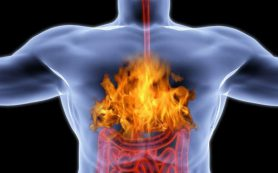 Эти проверенные методы помогут устранить изжогу без таблеток