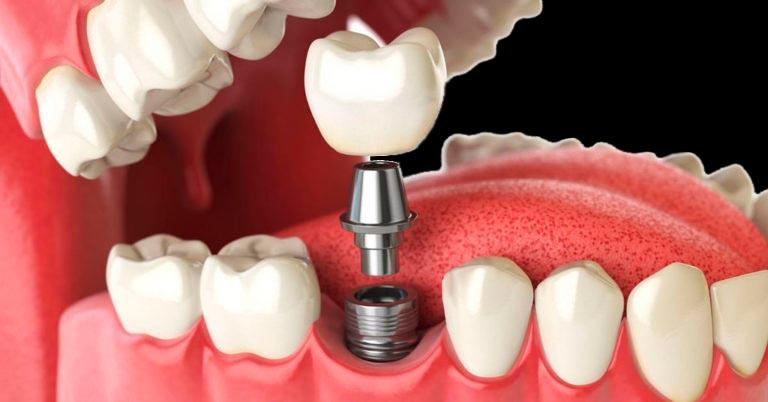 Протезирование зубов. Теперь привлекательные и здоровые зубы доступны путём косметической стоматологии!